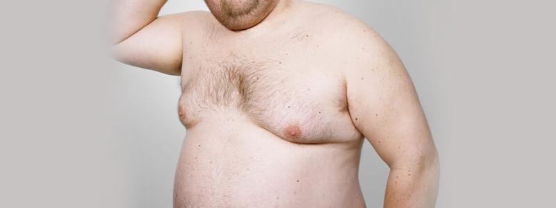 تصغير الثدي عند الذكور