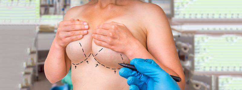 جراحة تكبير الصدر